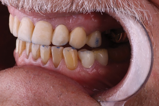 A close-up of a person's mouth Description automatically generated with medium confidence