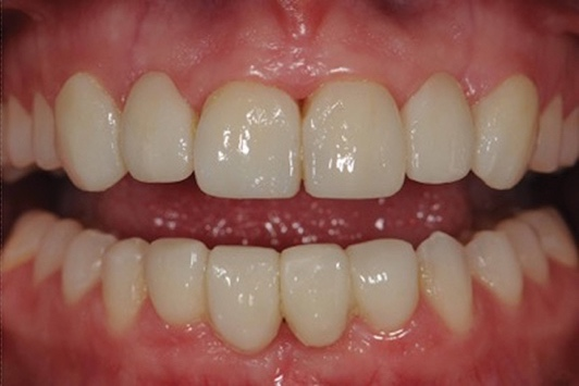 A close-up of a person's teeth  Description automatically generated with low confidence