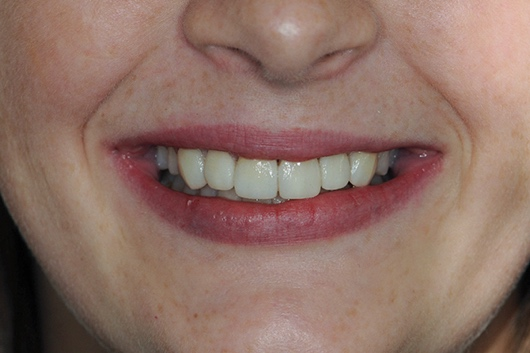 A close up of a person's teeth  Description automatically generated with medium confidence