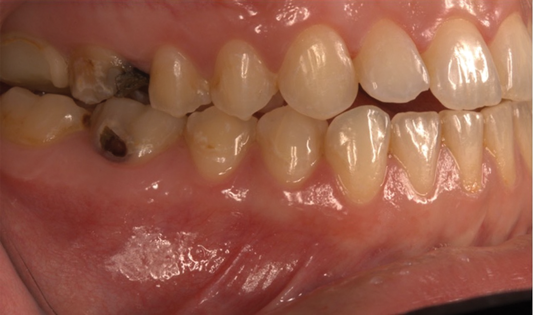 A close-up of a person's teeth  Description automatically generated with medium confidence