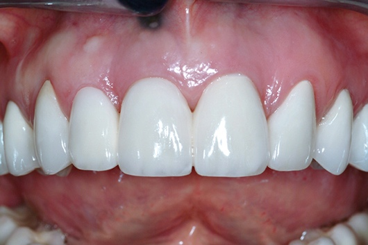 A person's mouth with teeth Description automatically generated with low confidence