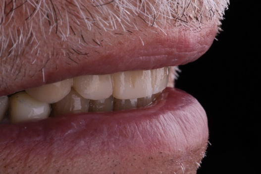 Close-up of a person's mouth Description automatically generated with medium confidence