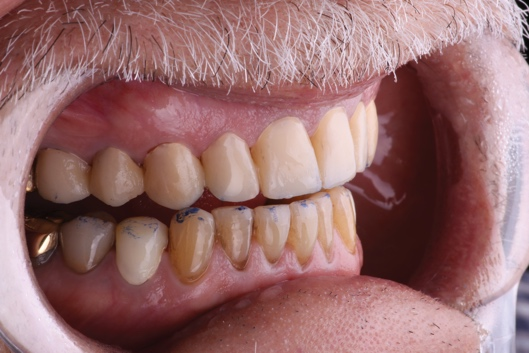 Close-up of a person's mouth Description automatically generated