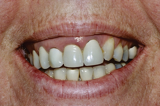 Close-up of a person's teeth Description automatically generated with medium confidence